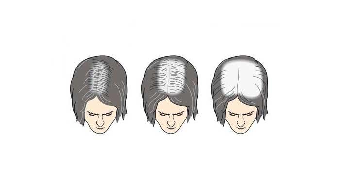 Alopecia Areata Feminina