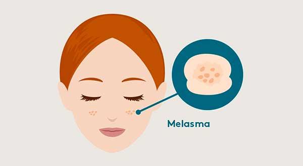 Tratamento do Melasma